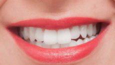素敵な笑顔を目指せる!歯を綺麗にクリーニングする方法
